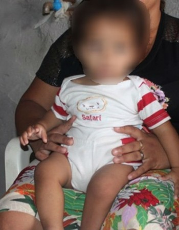 Criança nasce sem ânus em Floresta-PE e precisa de ajuda para tratamento