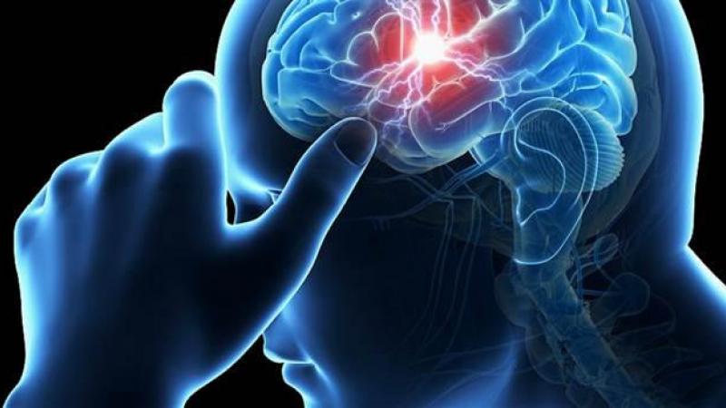 Acidente vascular cerebral é segunda causa de morte principal no país