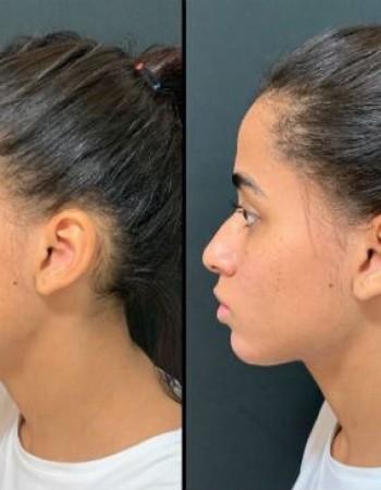 MC Loma faz harmonização facial e revela resultado