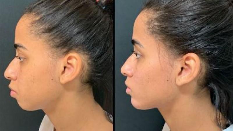 Harmonização facial é um procedimento estético que procura deixar o rosto mais 'simétrico'