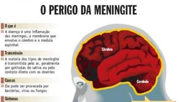 Secretaria de Saúde de Cachoeirinha confirma dois casos de meningite