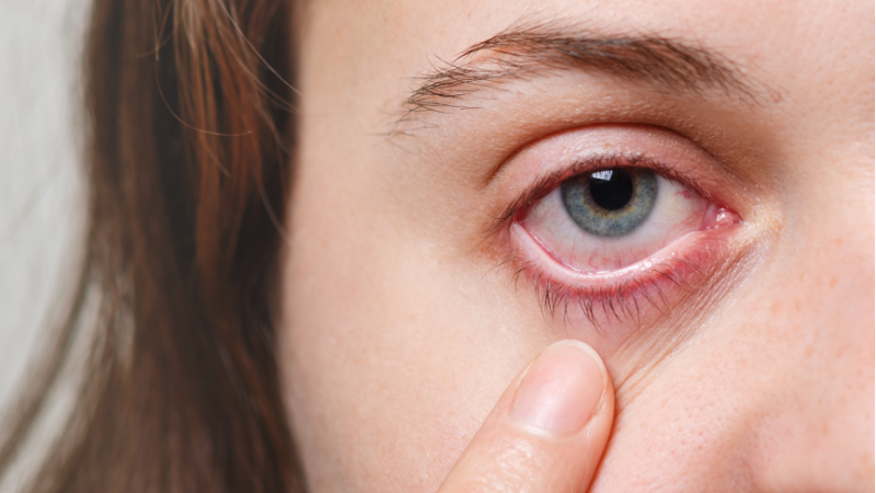 Uma pesquisa realizada por cientistas brasileiros, publicada na revista Ocular Immunology and Inflammation Journal, aponta que a doença pode causar sérias lesões vasculares nos olhos